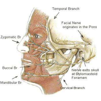 Cancer And Facial Nerve Vii